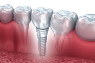 http://www.martinezcortina.es/wp-content/uploads/2015/12/dental-implants-320x214.jpg