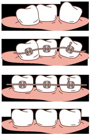 brackets-mueven-dientes