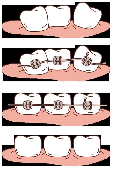 http://www.martinezcortina.es/wp-content/uploads/2016/05/brackets-mueven-dientes.png