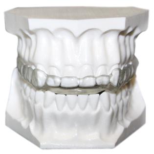 ferula-reconstruccion-bruxismo-aguilar-dental-salut